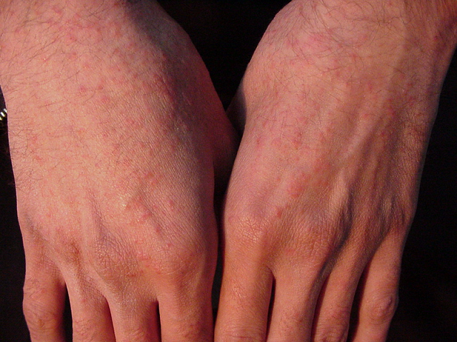 درباره آلرژی به آفتاب جه می دانید؟