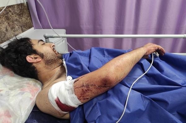 (تصویر) زورگیری خونین از یک عکاس خبری